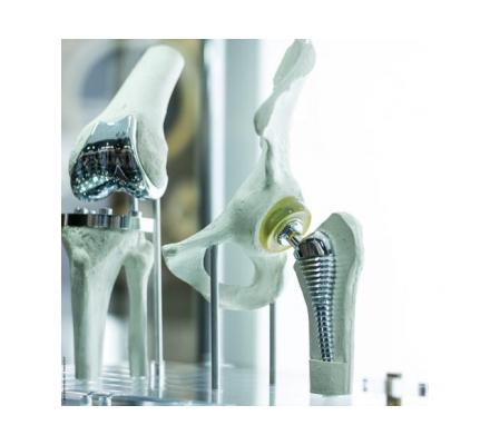 Best Orthopedic Implants Manufacturers