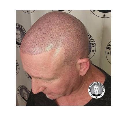 Hair Thinning Need Help - Scalp Micropigmentation