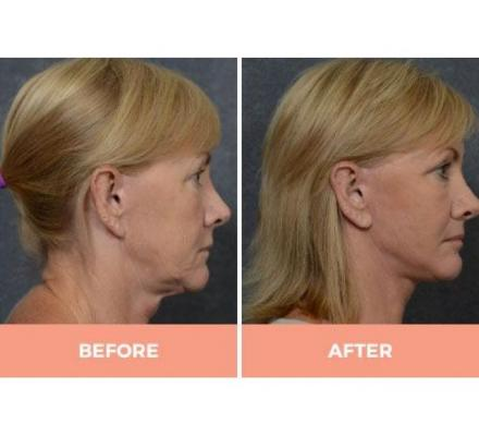 Effective Mid & Lower Facelift Surgery in Sydney By Dr. Hodgkinson - CALL US TODAY!