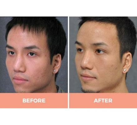 Expert Asian Rhinoplasty in Sydney Performed by Dr Hodgkinson!