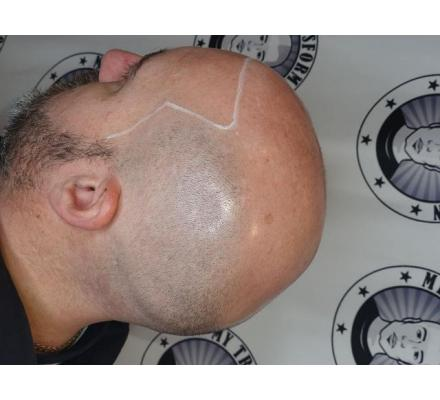 Scalp Micropigmentation 20% Discount On Full treatment
