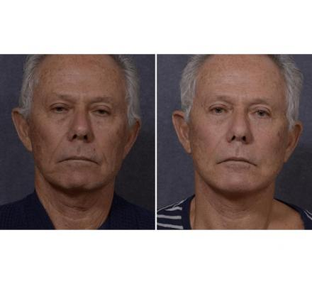Expert Face Surgery in Sydney By Renowned Facial Surgeon Dr Hodgkinson - Contact Us!