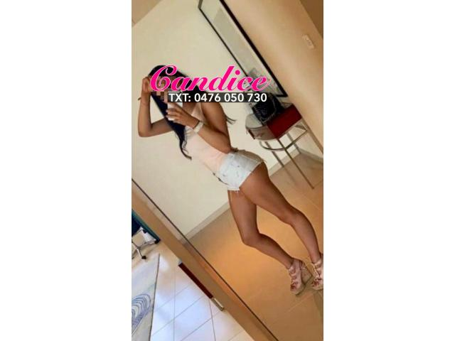Hottest Model in Sydney - Candice💖Stunning International Model Available Today in CBD