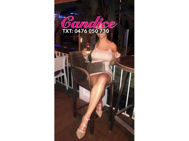 💖Candice💖Hottest Model in Sydney CBD Available Today💖