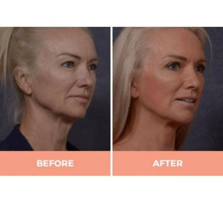 Effective Facelift Surgery in Sydney By Renowned Facial Surgeon Dr Hodgkinson!
