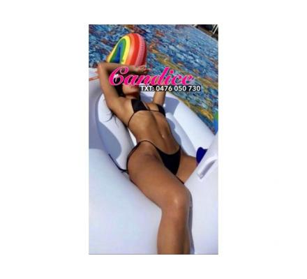 ?Stunning International Model Candice Available Today in CBD?