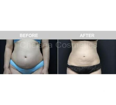 Effective Liposuction Surgery in Melbourne Performed By Chelsea Cosmetics Melbourne!