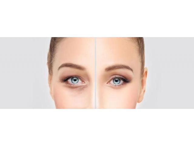 Restore A Youthful Facial Aesthetic with the Minimal Invasive Surgery by Lumiere Beauty Clinic!