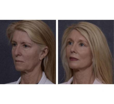 Professional Facelift Surgery in Sydney Performed by Dr. Hodgkinson!