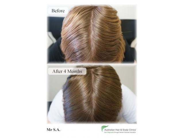 Know the benefits of our special hair treatment solution in Sydney