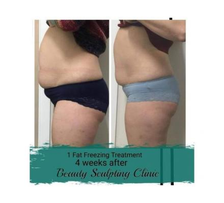 Instant Fat Reduction Result- Beauty Sculpting Clinic Pty Ltd