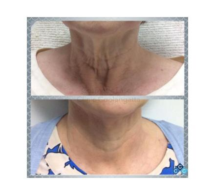 HIFU Treatment to Reduce Double Chin & Sags in Gold Coast