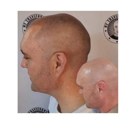 HAIR LOSS!! We Have The Answer