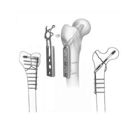 Reliable Orthopedic Instruments Suppliers